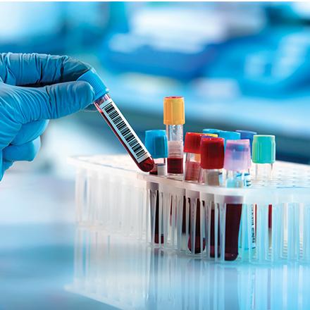 BioMérieux diagnostic